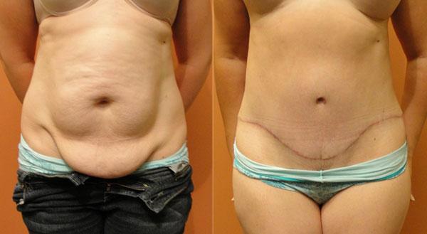 abdominoplastie après grossesse