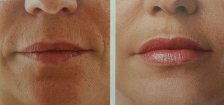 Gommer les rides des lèvres supérieures : acte en vogue