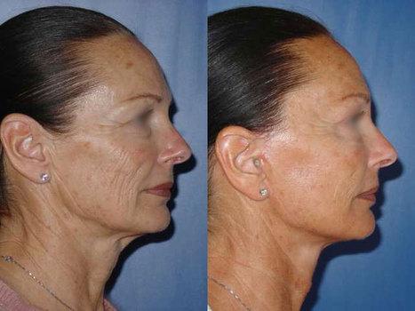 Le lifting du visage restaure votre confiance en soi