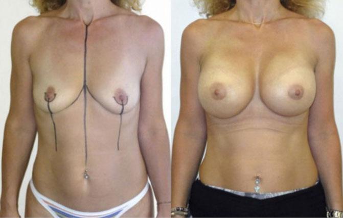 augmentation mammaire photo avant après