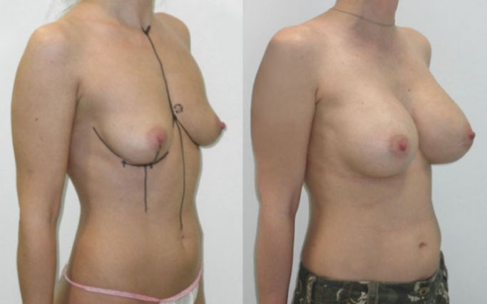 augmentation mammaire par implant