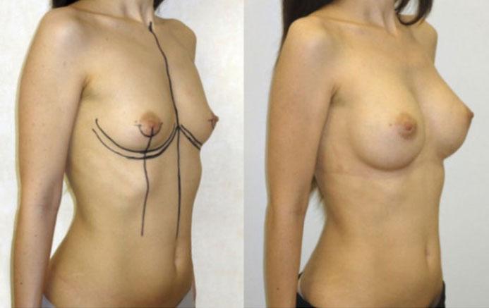augmentation seins par implants anatomiques