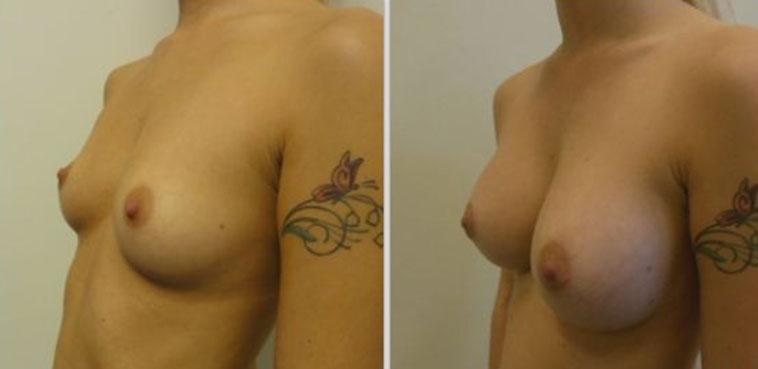 photos lipofilling mammaire avant apres