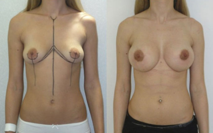 augmentation seins par implants ronds
