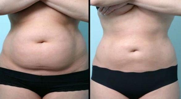 Récupération après abdominoplastie : durée et conseils pour une meilleure convalescence