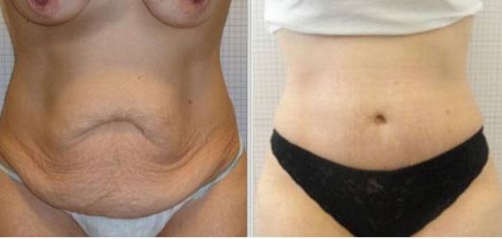abdominoplastie réussie