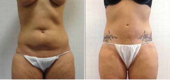cicatrices invisibles abdominoplastie
