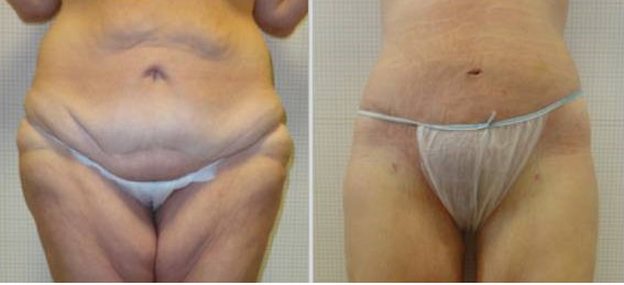 photos avant apres abdominoplastie
