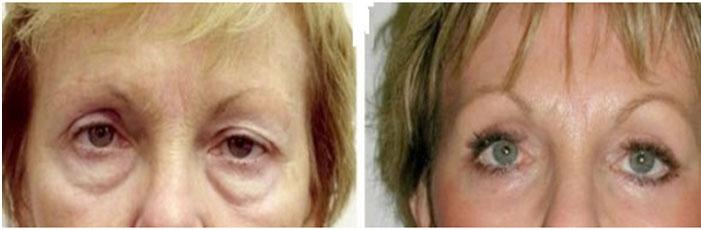 photos avant apres blepharoplastie