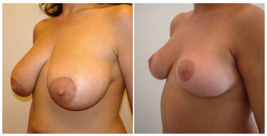 photos avant apres lifting seins