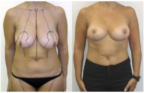 traitement ptôse mammaire