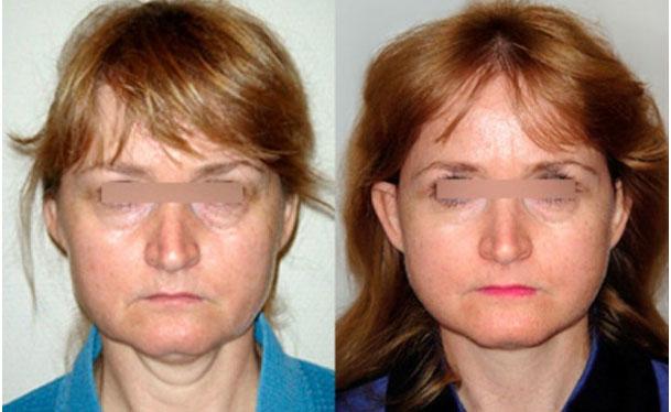 photos avant après traitement des rides