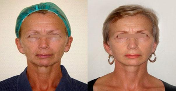 photos avant après lifting facial