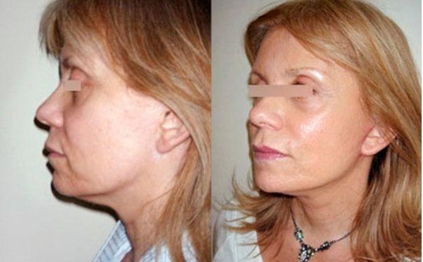 photos avant après lifting visage