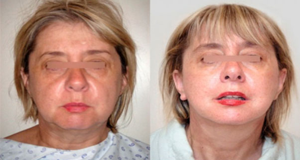 suppression des rides visage et cou