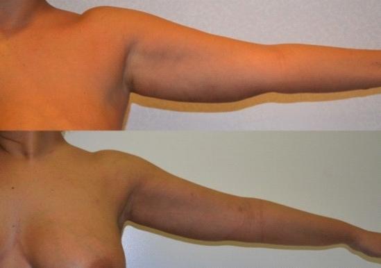 liposuccion bras avant après