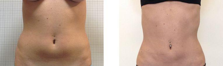 liposuccion bas-ventre, abdomen et flans