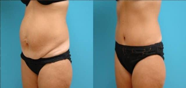 chirurgie de ventre après grossesse