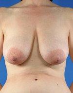 correction ptose mammaire