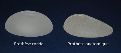 augmentation seins par prothèses