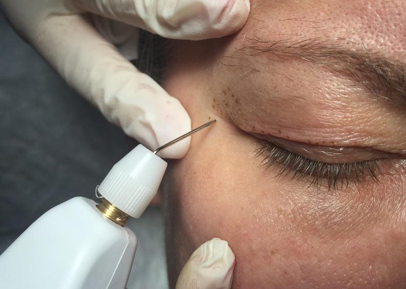 blepharoplastie medicale en Tunisie