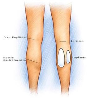 augmentation mollets par prothese