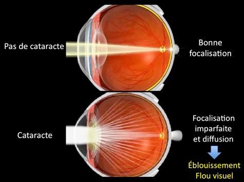operation cataracte Tunisie