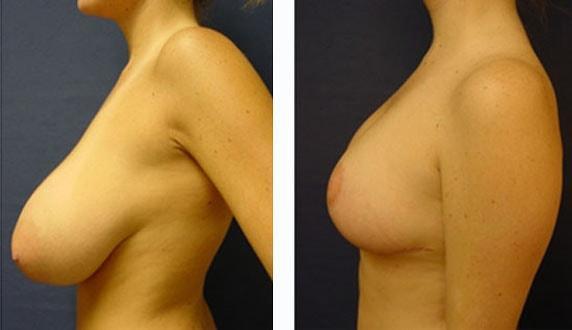 Tentée par une chirurgie de réduction mammaire ?