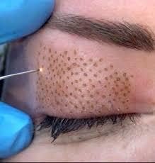 blepharoplastie laser