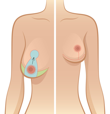 Solutions pour les seins asymétriques