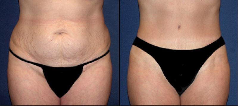 Comment une abdominoplastie peut aider à enlever les vergetures ?