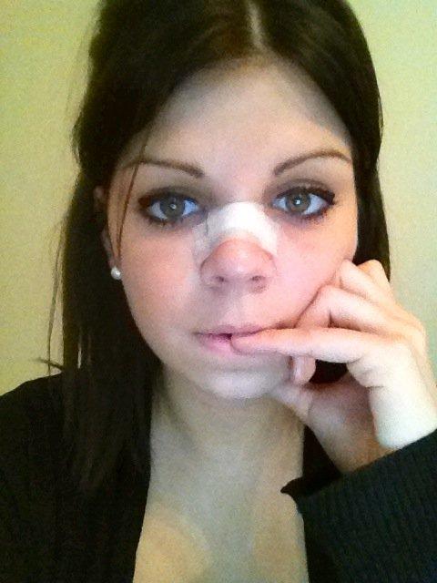 Comment faire dégonfler le nez après rhinoplastie ?